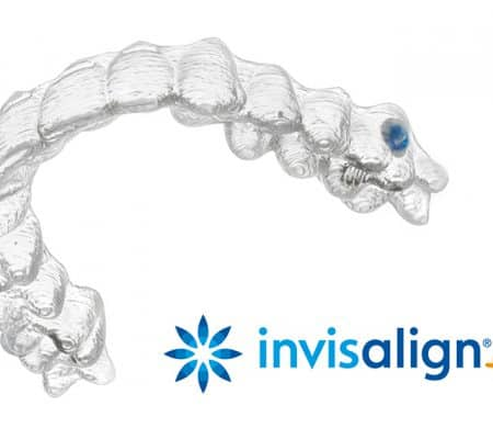 Invisalign Teen Compliance Indicator