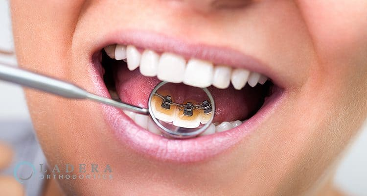 invisible lingual braces