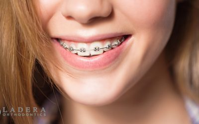 Paying for orthodontics