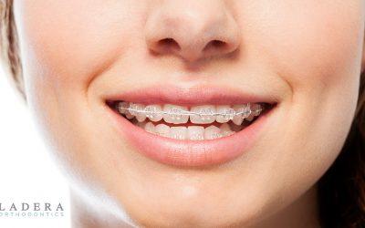 questions about braces